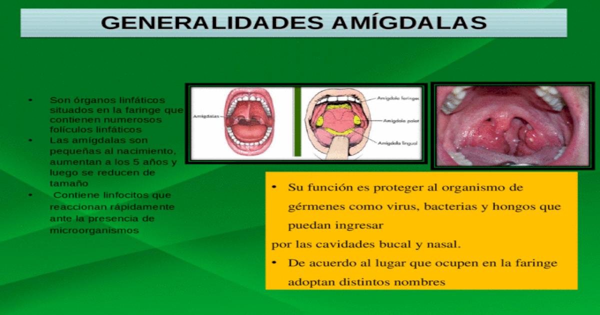 Perfecto Anatomía De La Garganta Y Las Amígdalas Composición ...