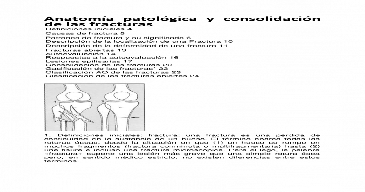 Solo Para Ortopedistas - [PDF Document]